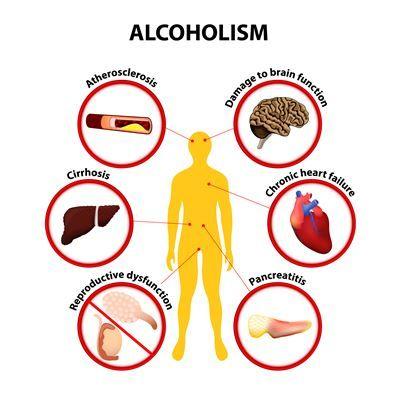 Efectos de la adicción al alcohol