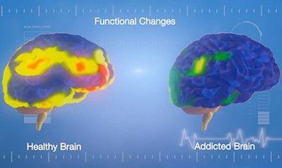 La adicción es una enfermedad conlleva cambios neuronales que afectan a muchas áreas del cerebro