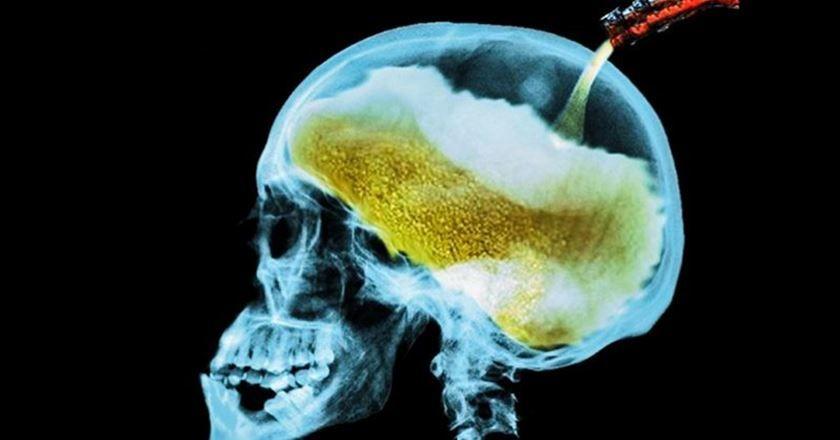 Daños que produce alcohol en cerebro