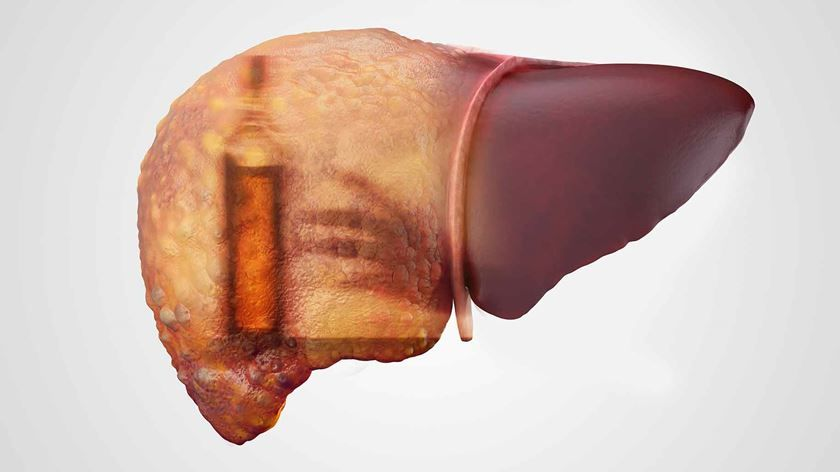 Enfermedades que provoca el alcohol