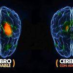 Adicción y cerebro